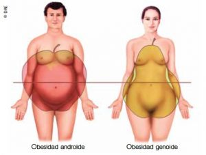 Ejemplos de obesidad androide y genoide