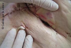 complicaciones de las ostomías digestivas