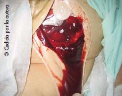 Hemorragia del estoma