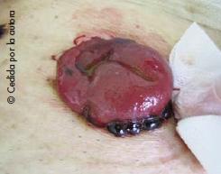 Hemorragia en el borde del estoma