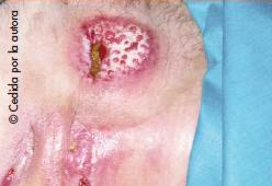 Ileostomía con estenosis y fístulas en la enfermedad de Crohn
