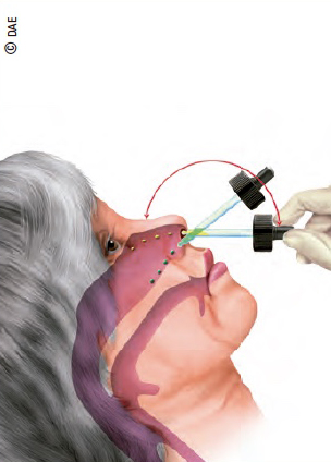 administración nasal de medicamentos
